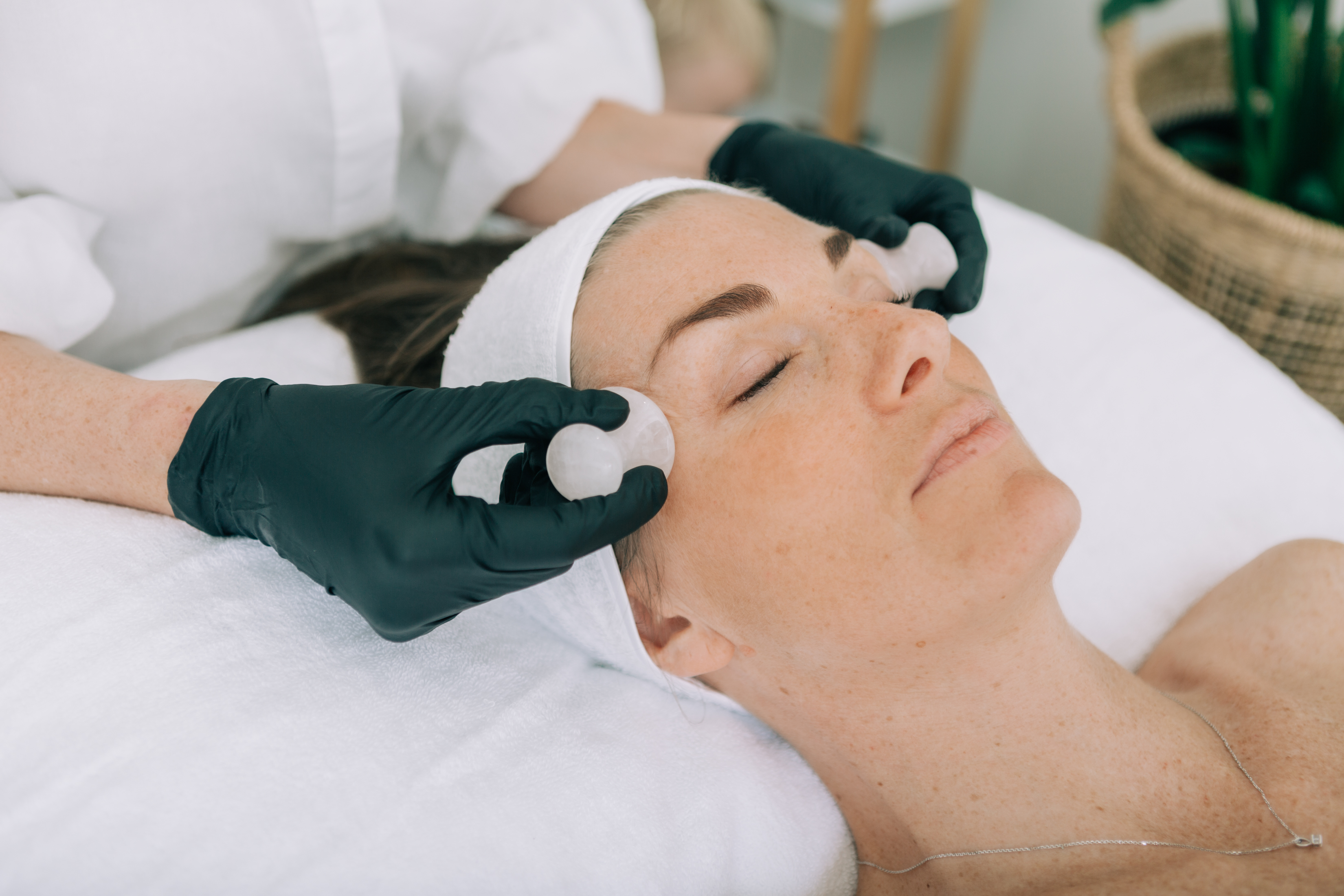 cosmetic acupuncture geelong